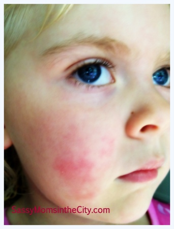 Fifth Disease In Adult