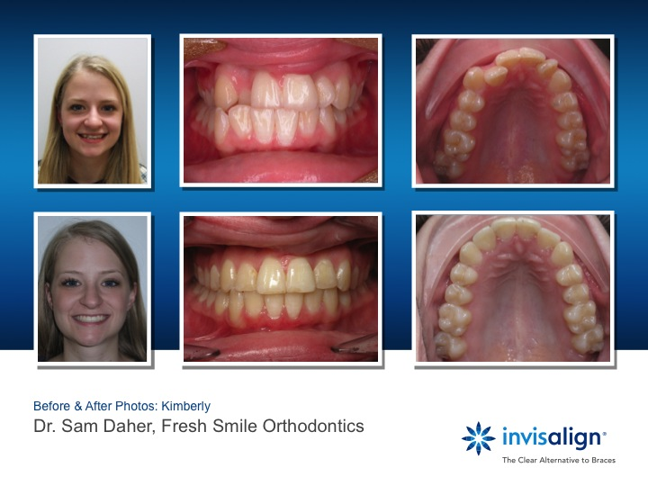 Braces Are Finally Cool With Invisalign